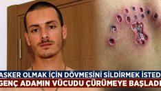 Askere gitmek için dövmelerini sildiren genç adamın vücudunu çürüdü!